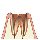 ヴィータ歯科 むし歯治療