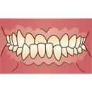 悪い歯並び 下顎前突