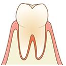 名古屋市北区 歯医者 歯科医院 むし歯 ヴィータ歯科