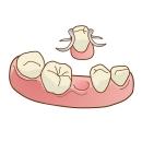 歯を失った場合の治療法 入れ歯