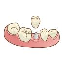 歯を失った場合の治療法 インプラント