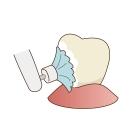 名古屋市北区 歯医者 歯科医院 むし歯予防 予防歯科 ヴィータ歯科